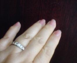 「ヘバーデン結節」と診断された私の指