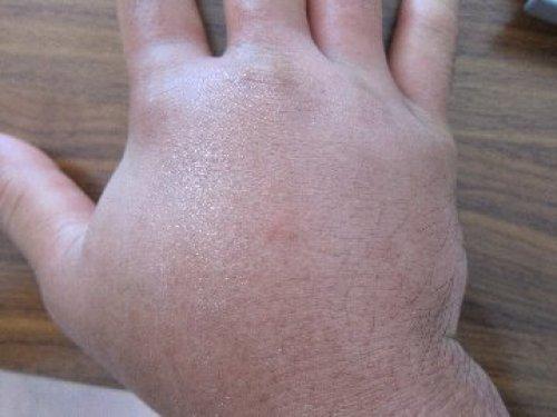 腫れ アブ 夏はアブに注意!アブに刺された(噛まれた)時の対処方法やブヨとの違い