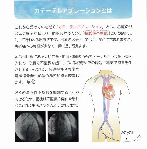 アブレーション 手術 カテーテル