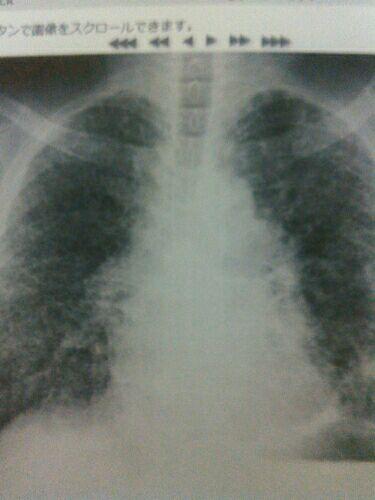肺がん ステージ 4 ブログ
