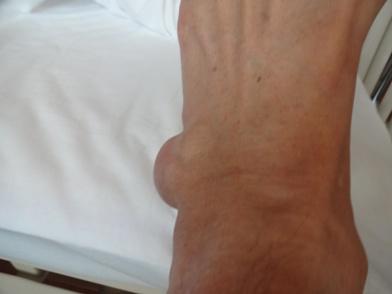 手術前の足でした。