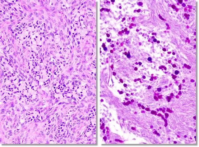 ベルグ 腫瘍 ケン クルー