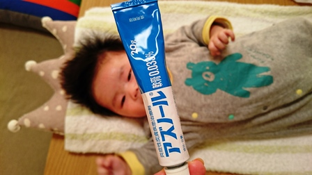 アズノール軟膏 乳児湿疹