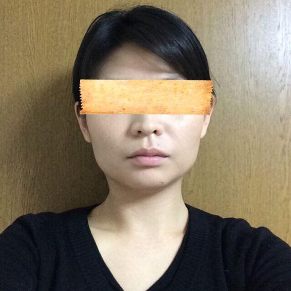 歯列矯正 before写真 顔 横顔 | ...