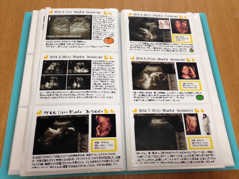 写真だけ印刷して、余白部分に ... : 超音波アルバム : すべての講義