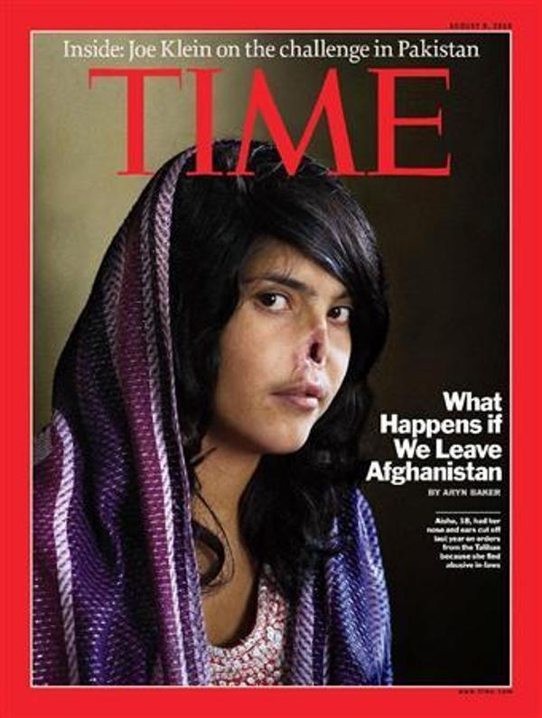 鼻を切り取られたアフガン女性の...