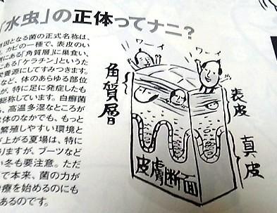 水虫3.JPG
