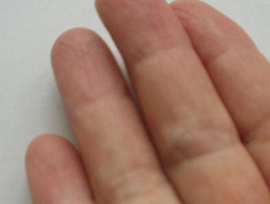 指ガングリオン
