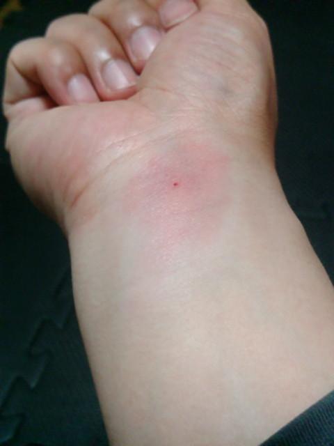 ブヨに刺された右手