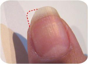 欠けた親指の爪