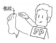 足の裏の飯粒.JPG