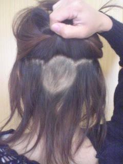 女性で髪が薄い、少ない人 ...