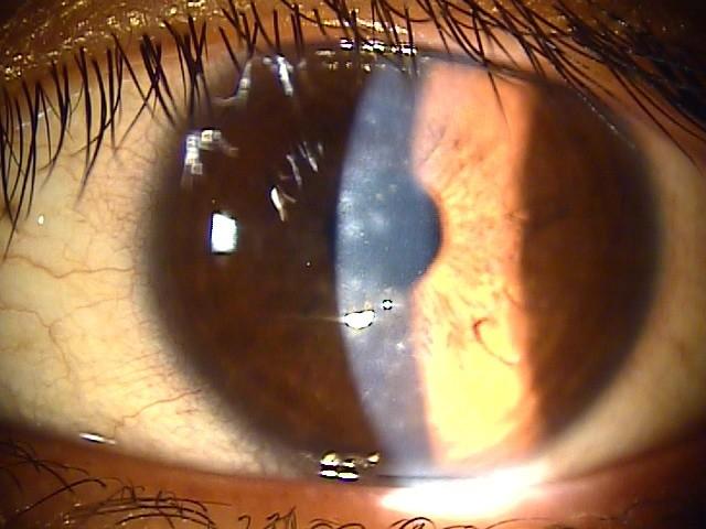 結膜炎 仕事 眼帯