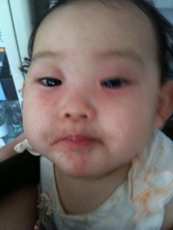 口 写真 子供 湿疹 の 周り