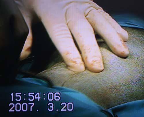腰の腫瘍・切除前