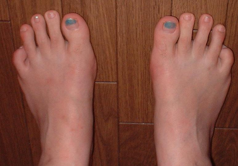 足指の形 | Healing Space GAIA ...