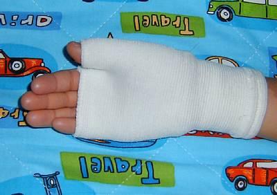 右手負傷   20070427