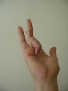 ばね指 009.jpg