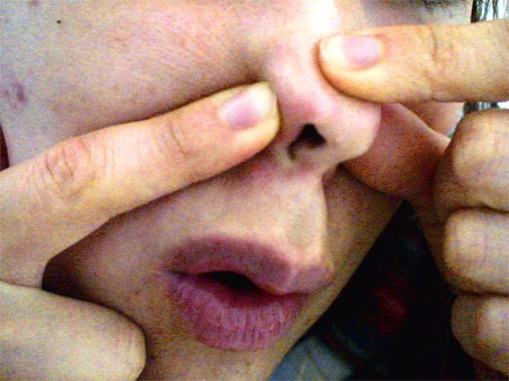 汚れ の の 鼻 毛穴 鼻の毛穴の黒ずみを解消する方法!鼻の黒い汚れを治すには?