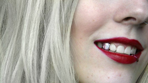 silver-tooth-700x395.jpeg