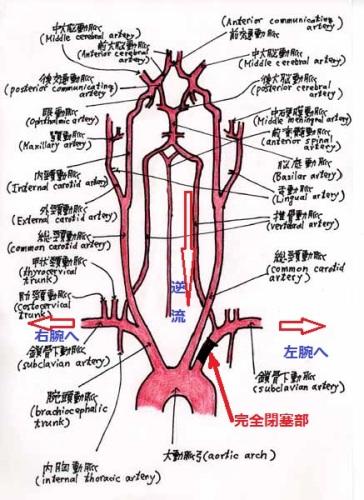 左鎖骨下閉塞性動脈硬化症と血液...