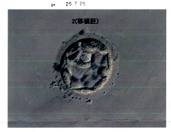 01_受精卵.jpg