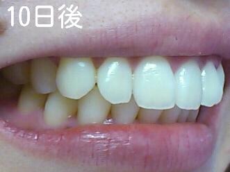 歯磨き粉 口コミ クレスト OPTIC WHITE歯磨き粉の効果は?口コミと実際使った感想