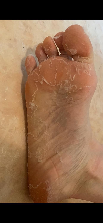 の むける 足 親指 皮 が