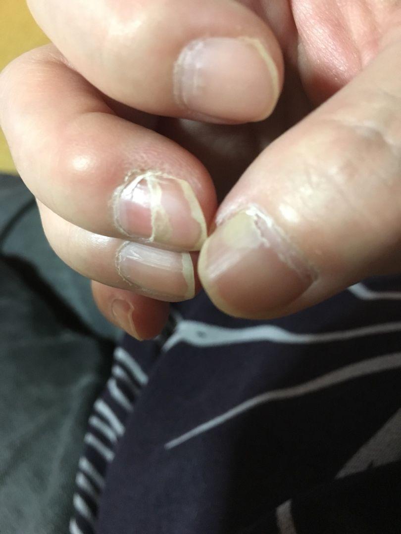 口 病 爪 剥がれる 手足 が