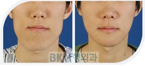 両顎手術症例3.JPG