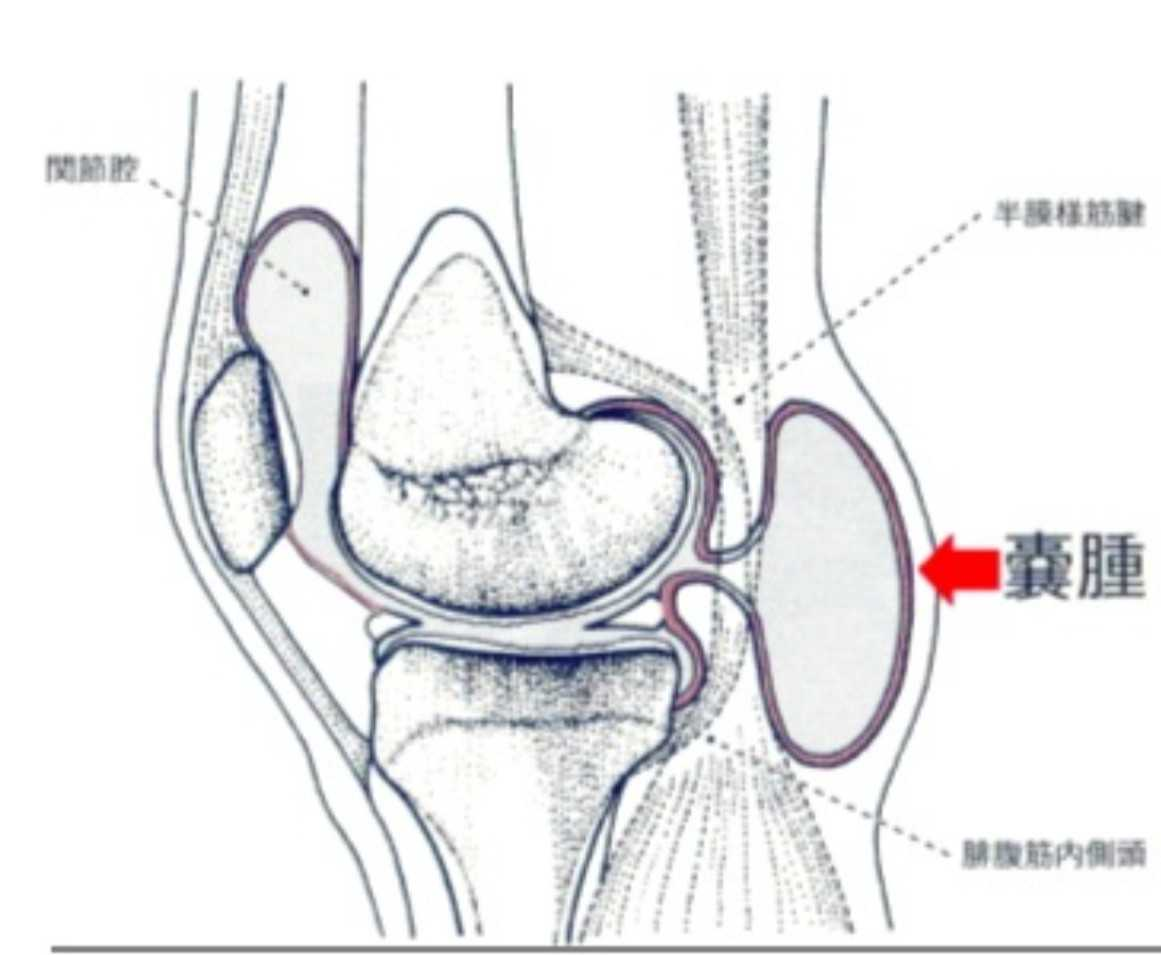 ブログ 卵巣 嚢腫