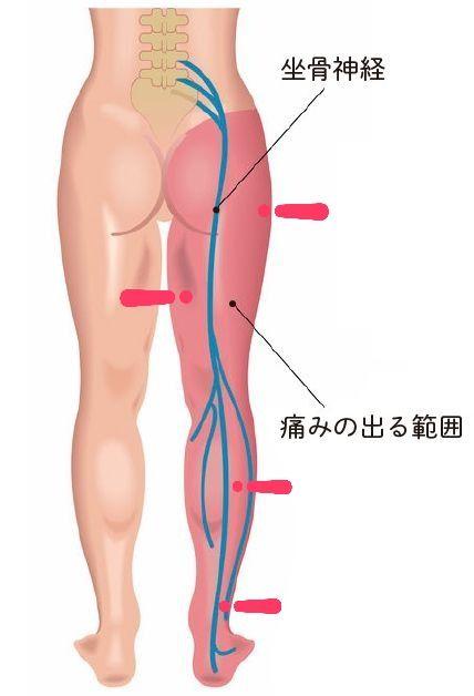 神経痛 ロキソニン 坐骨