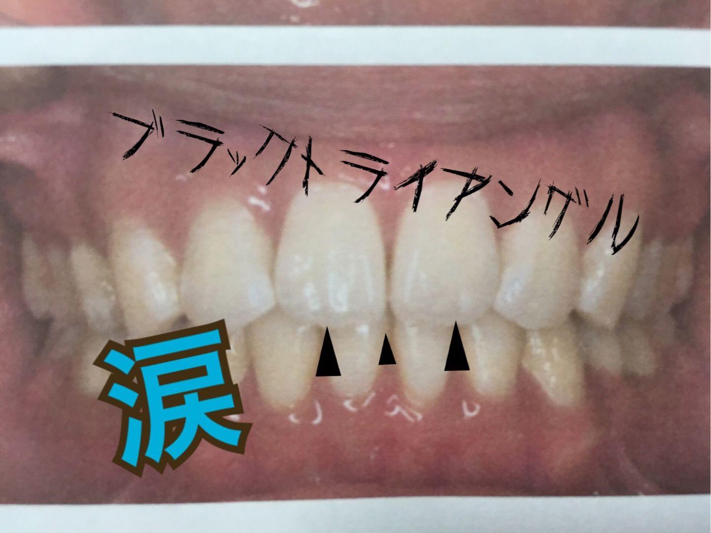 歯茎 剥がれる 親知らず