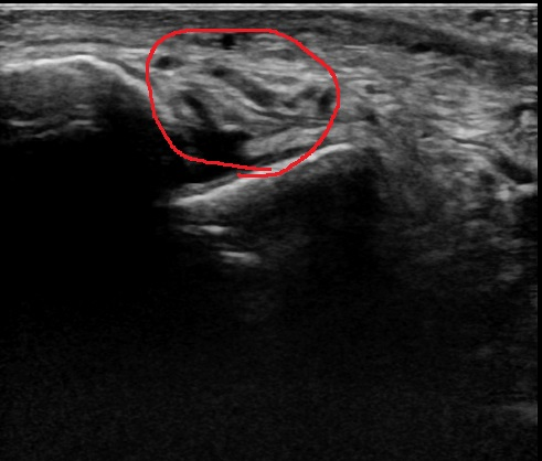 腓骨下端部骨折2.jpg