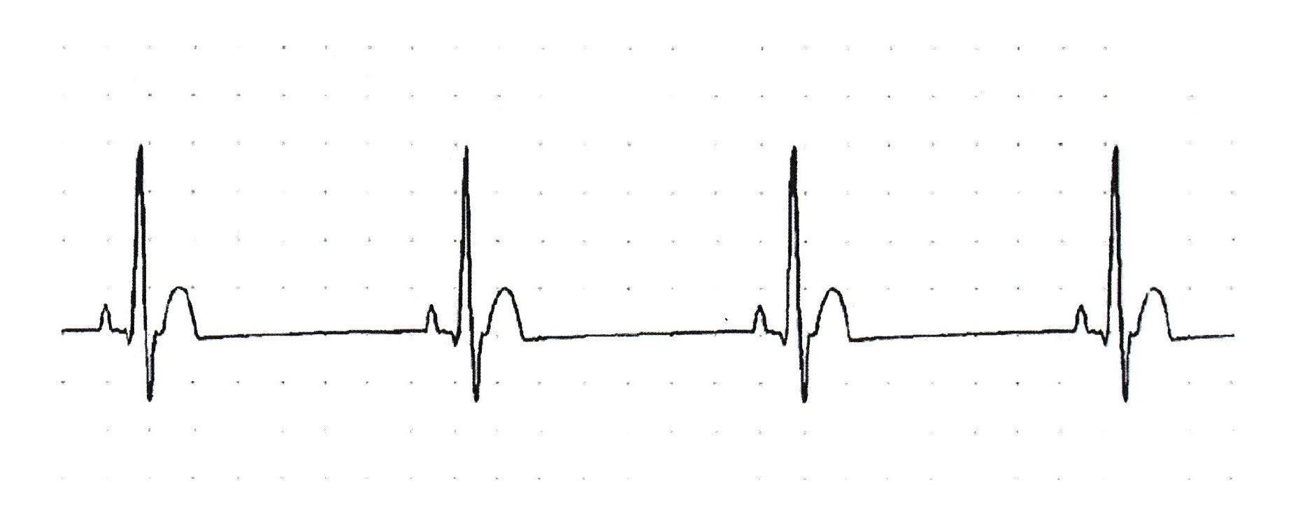計算 心電図 心拍 数
