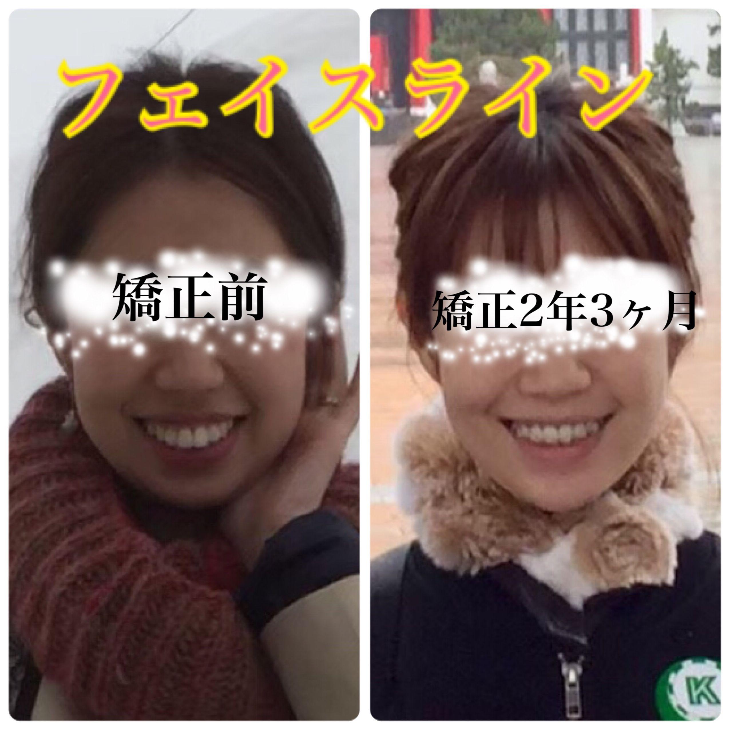 の 顔 歯 矯正 変化 列