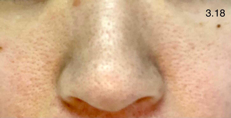 鼻 ホホバ オイル いちご鼻(鼻の黒ずみ)を治すためにホホバオイルを使った体験談