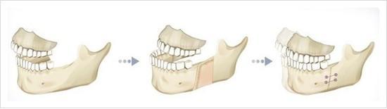 両顎手術.JPG