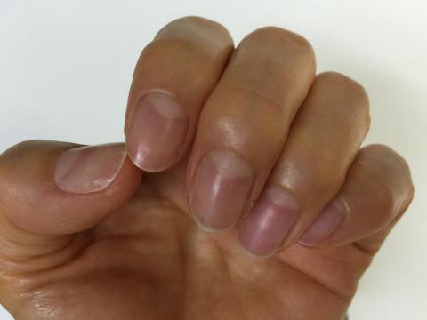 ドクターネイルのディープセラムを塗った爪