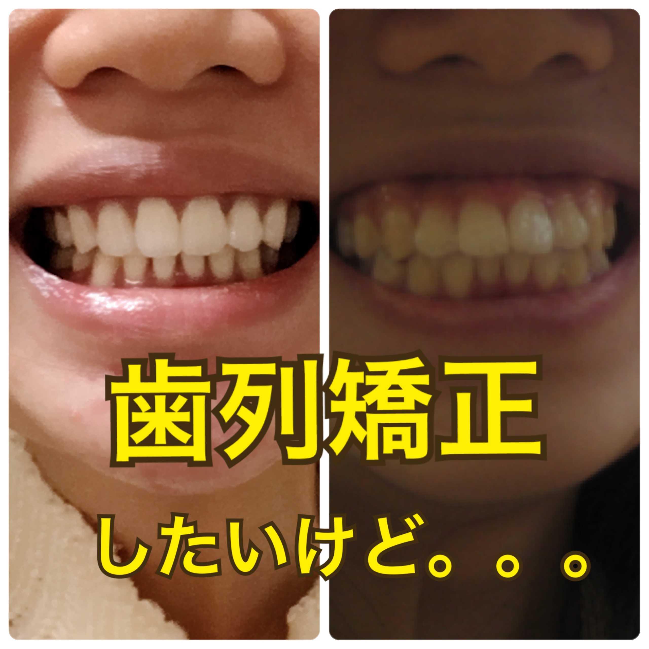 矯正 まあ た そ マウスピース矯正(インビザライン)なら青山アール矯正歯科 東京・大阪