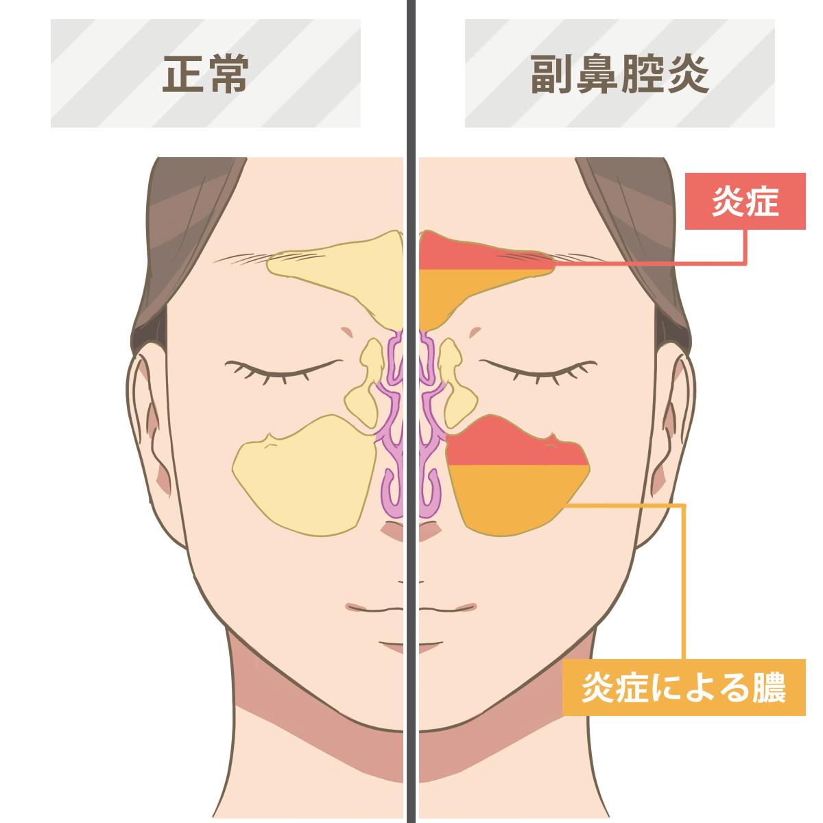 頭痛 炎 副 鼻腔