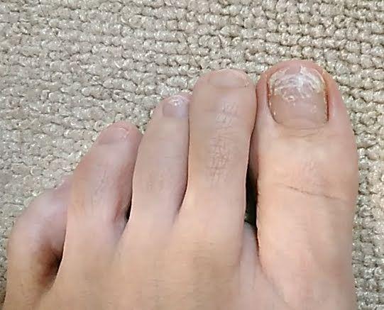 足の爪 シール張替え Kande S Diary 楽天ブログ