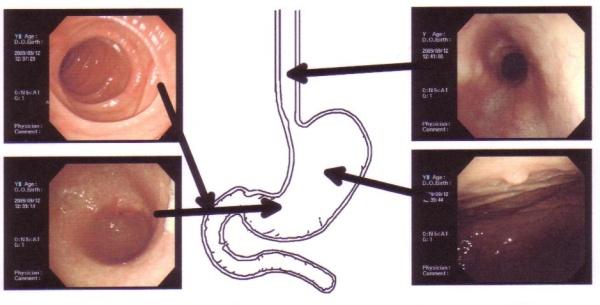 胃カメラの映像 胃ポリープ