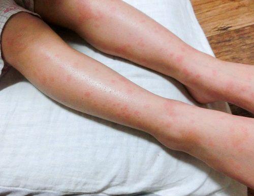 溶連菌の後 全身に赤い発疹 原因は薬疹 かたっぱしからやって