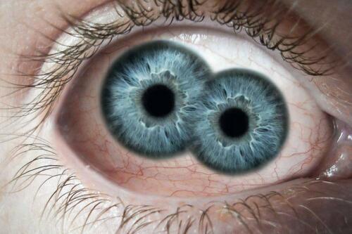 瞳の色 | 耳(ミミ)とチャッピの布団 - 楽天ブログ
