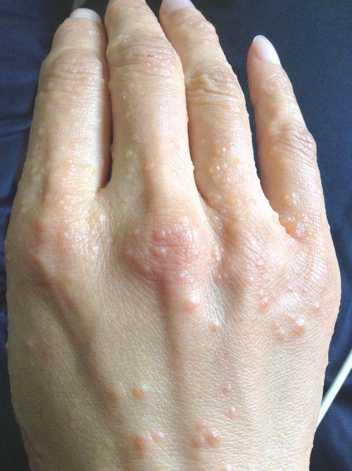 手のひら が かゆい 湿疹 なし 手にできる湿疹のいろいろ│かゆみナビ