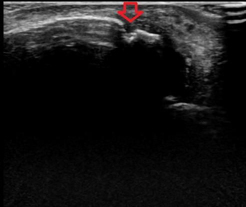 腓骨下端部骨折1.jpg