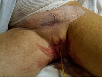 penectomy-ope術後
