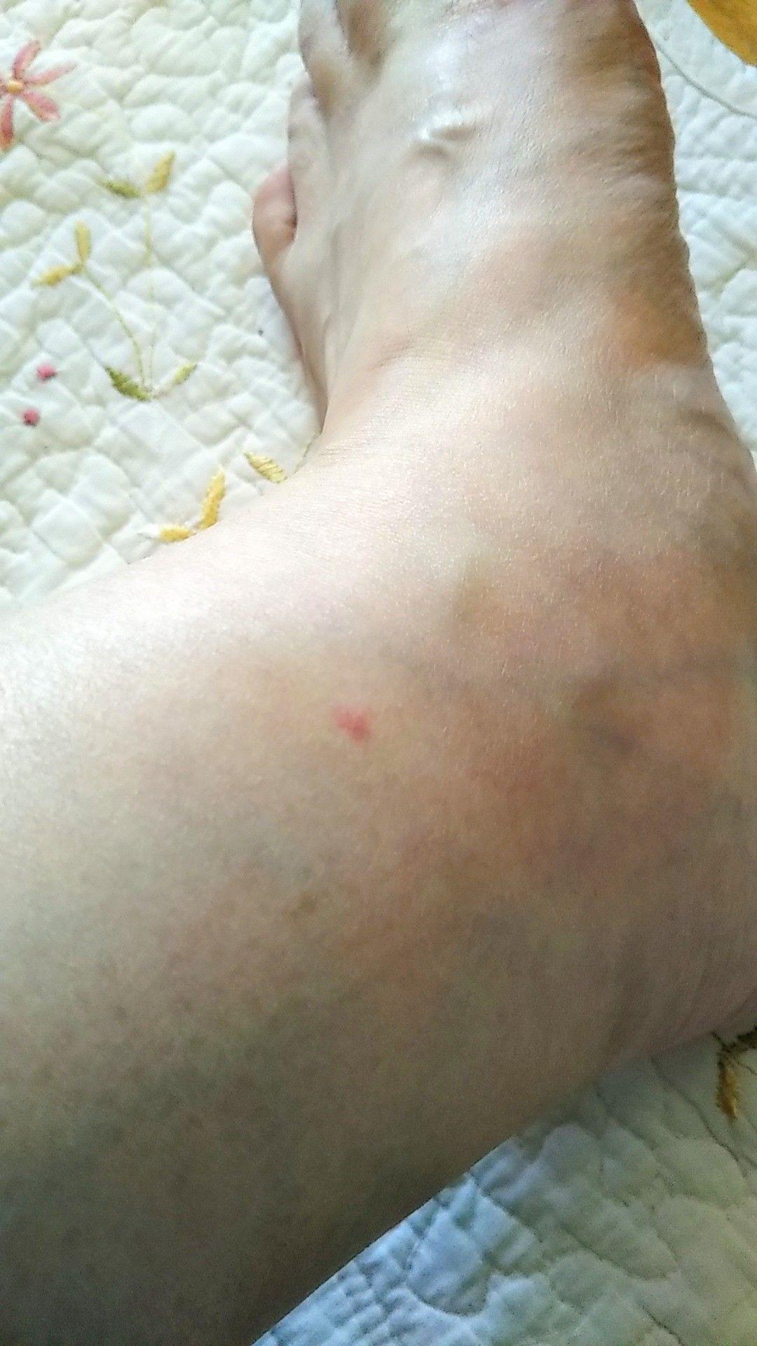 慢性 蕁 麻疹 完治 ブログ