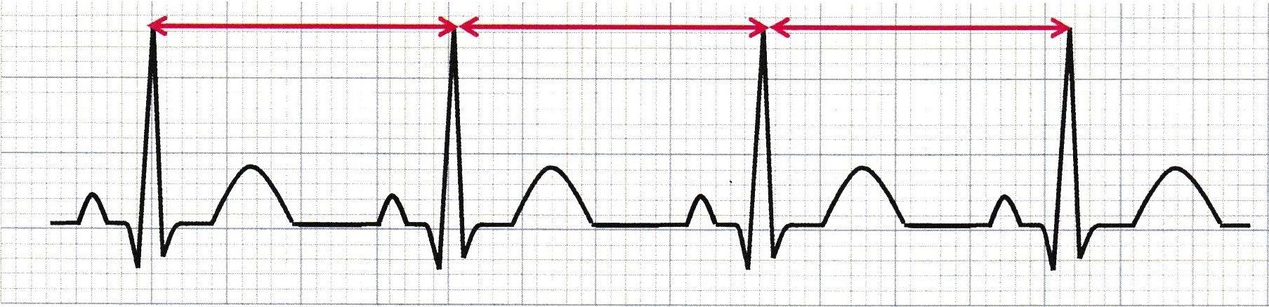 💜正常洞調律(normal sinus rhythm;NSR)💛]の記事一覧   🚑ナースのための『心電図』🚑 - 楽天ブログ